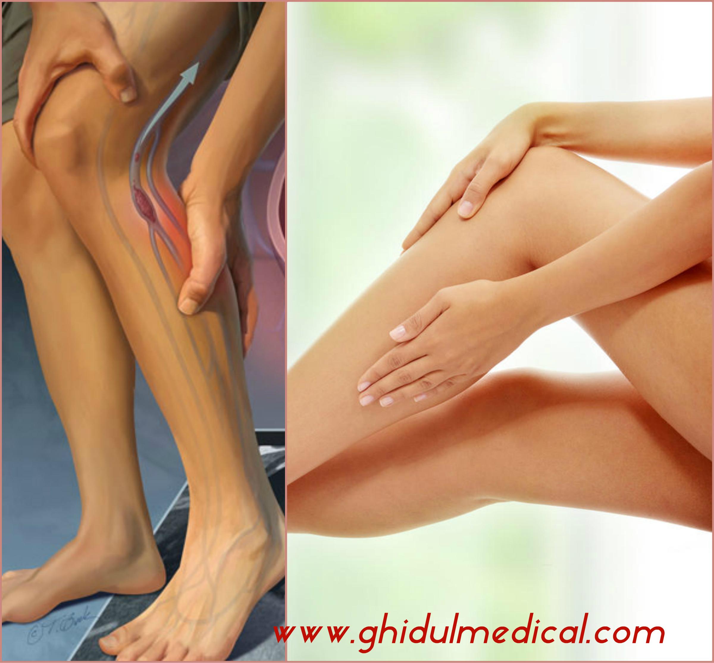 Tromboflebita la picior poze