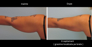 SculpSure - Dr Laura Anca Dermatology - www.ghidulmedical.com