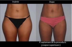 SculpSure- Dr Laura Anca Dermatology - www.ghidulmedical.com