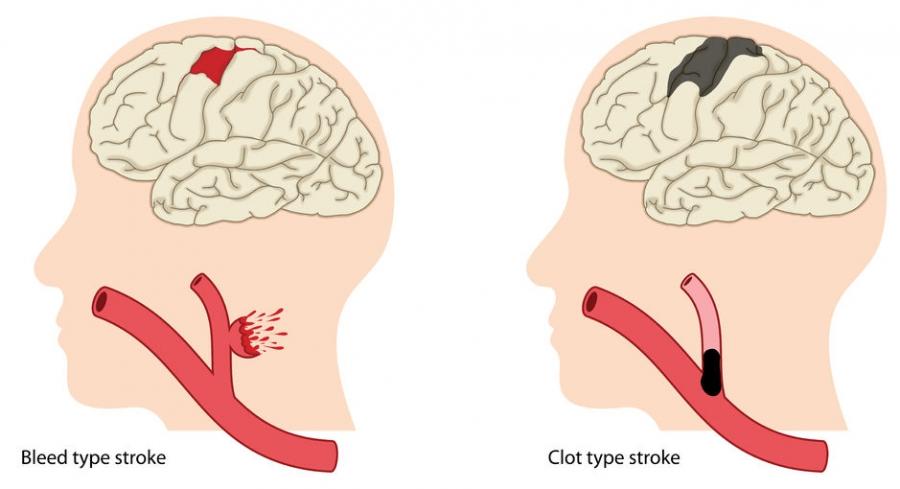 strokem